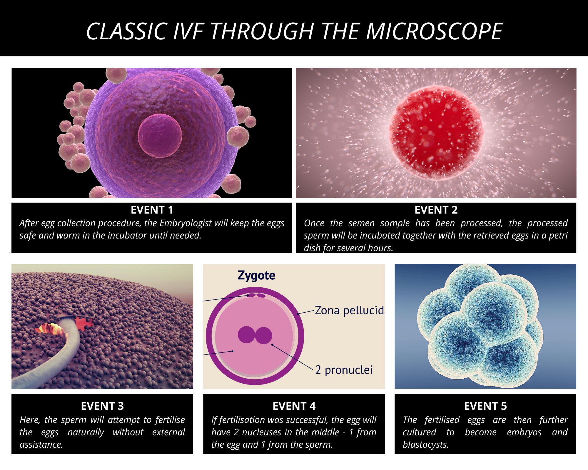 Classic-IVF-Through-The-Microscope