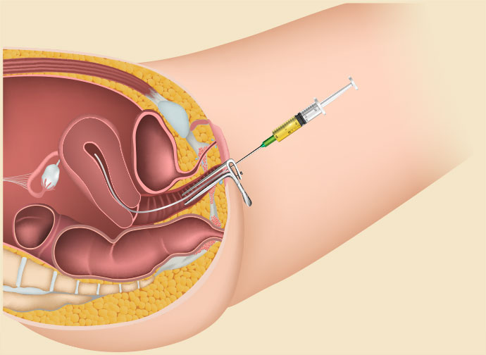 IUI: Intra-Uterine Insemination