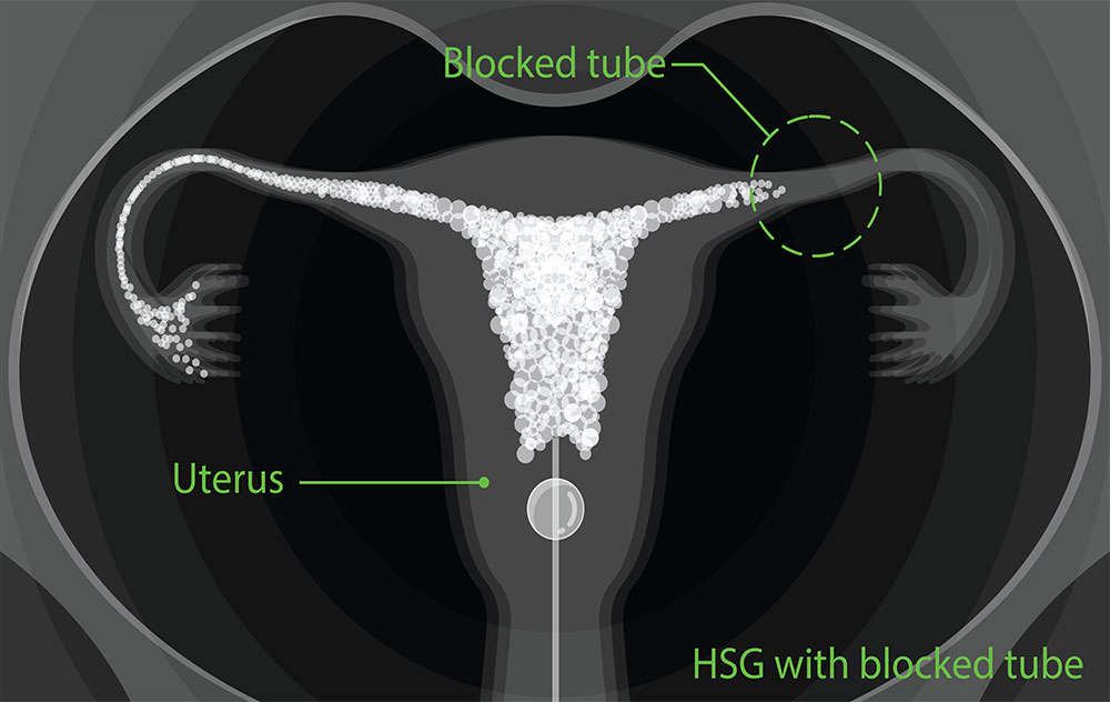 Hysterosalpingogram (HSG) blocked tube